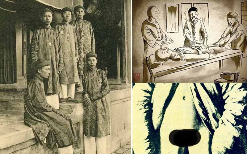 Процедура превращения в евнуха китайских мужчин